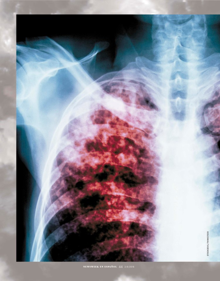 pulmones-negros1-1